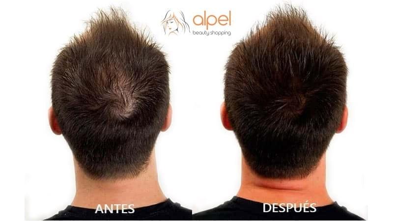 Maquillaje CAPILAR para cubrir la alopecia en segundos